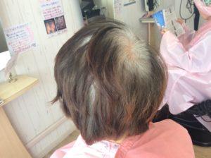 毛染めをして痒い、染みる、被れる人の白髪染め