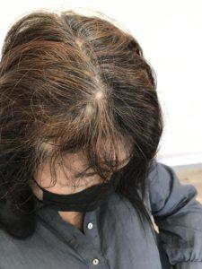 強いくせ毛をエンジェリックケアで解消
